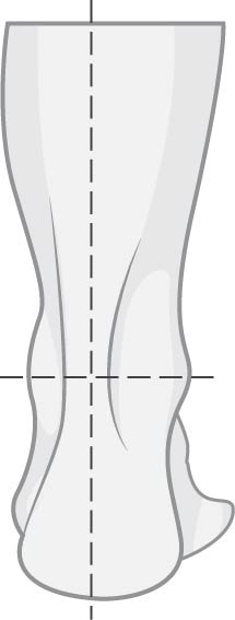 Neutral Gait Size